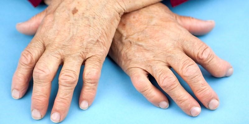درمان آرتریت با اووکادو