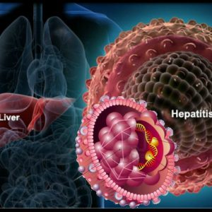 هپاتیت B