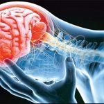 درمان بیماری مغز و اعصاب