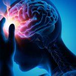 درمان بیماری های مغز و اعصاب