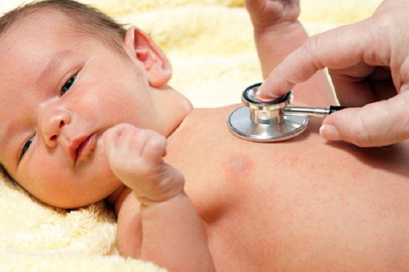 درمان زردی نوزادی (ایكتر)