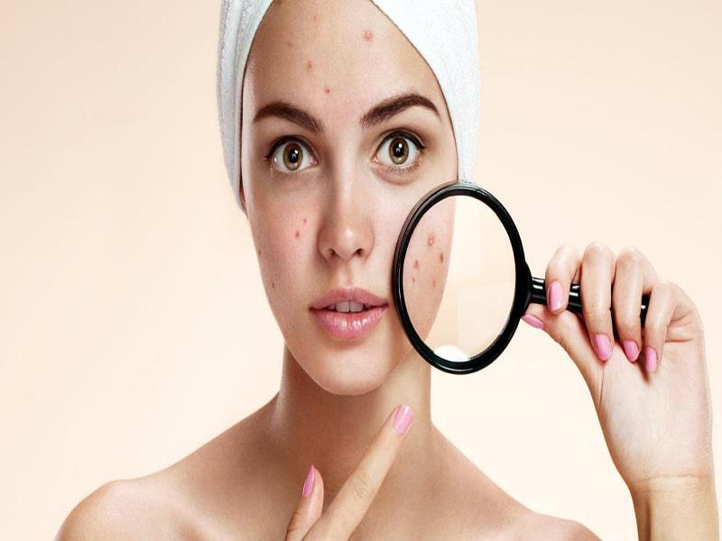درمان بیماری ها در طب سنتی ، پوست و مو