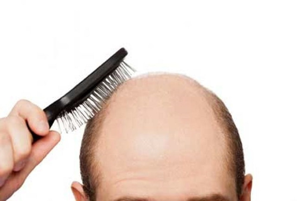 درمان کچلی سر و تقویت مو و ابرو