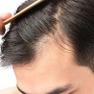 ریزش ناگهانی قستمی از موها