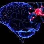 سکته های مغزی