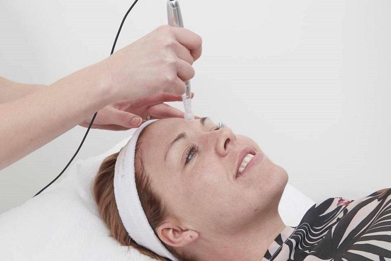 علائم افزایش هورمون مردانه و پرمویی در خانم ها