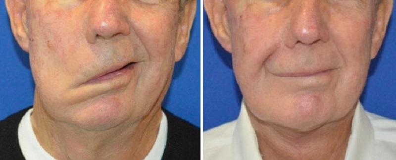 نحوه تشخیص و درمان فلج صورت