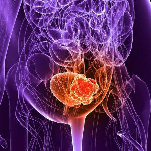 سرطان مثانه