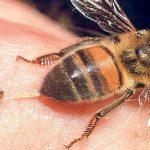 جمع آوری زهر زنبور عسل