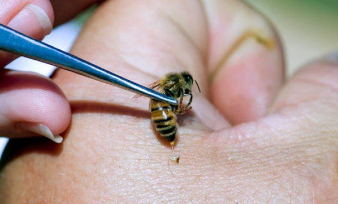 لوازم مورد نیاز برای زنبور درمانی