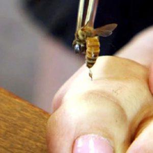 درمان بیماری های پوست با زهر زنبور