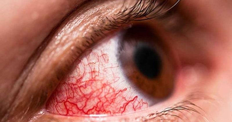 التهاب ملتحمه چشم به علت آلرژی