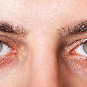 بیماری ها چشم