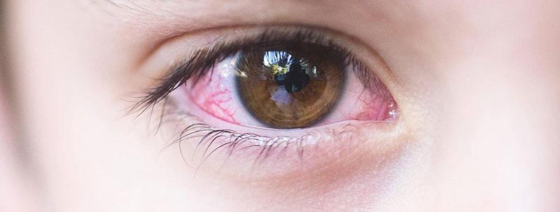 خارش پلک چشم-1