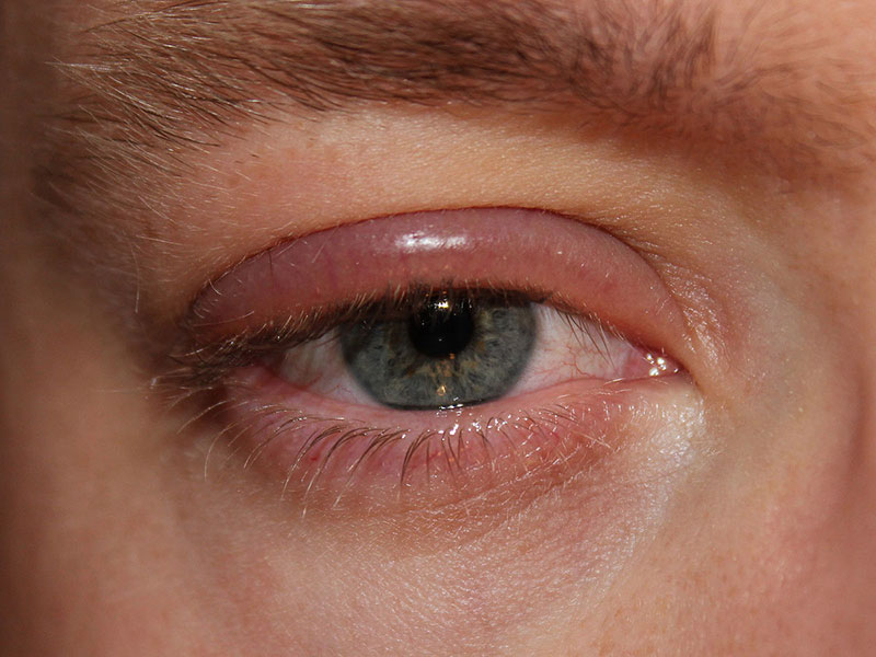 خارش پلک چشم-2