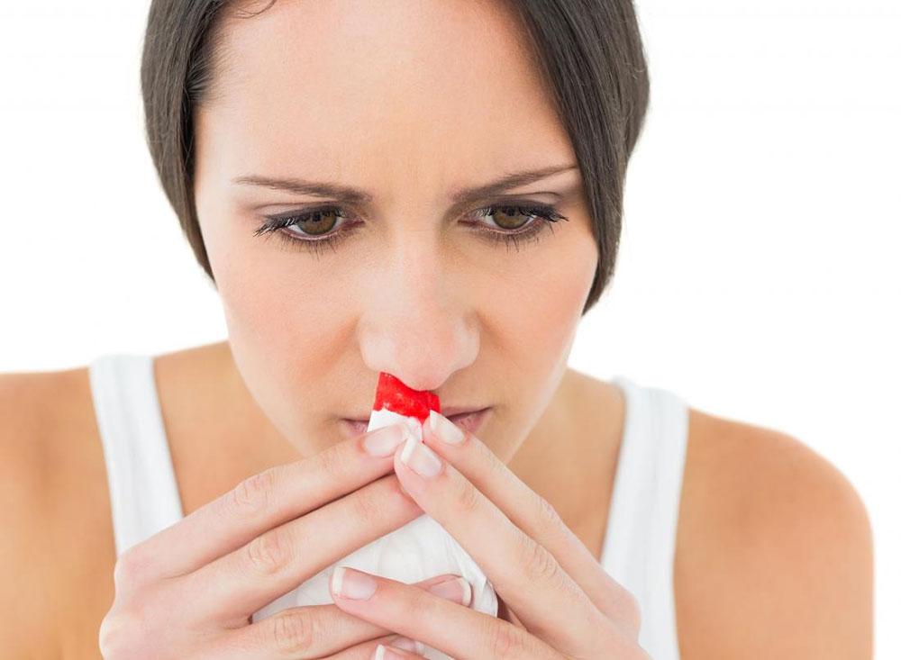 خونریزی از بینی