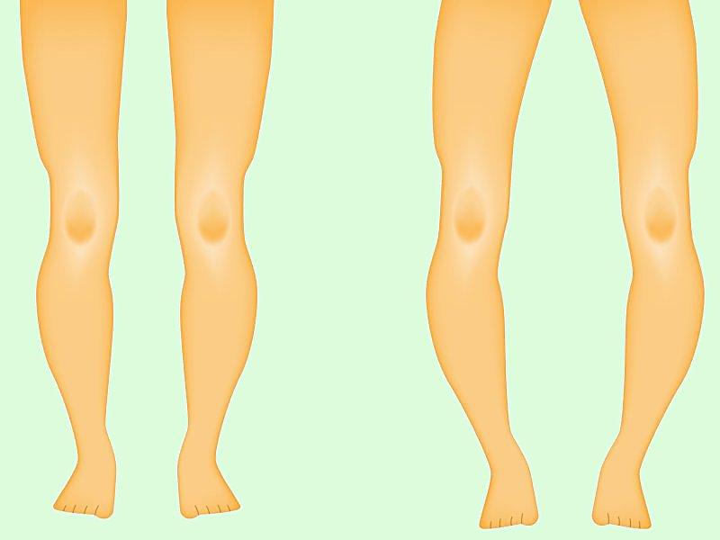 تصویری از پاهای فرد سالم و فرد مبتلا به راشیتیسم
