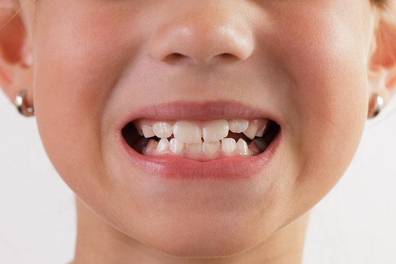 لق شدن دندان ها-1