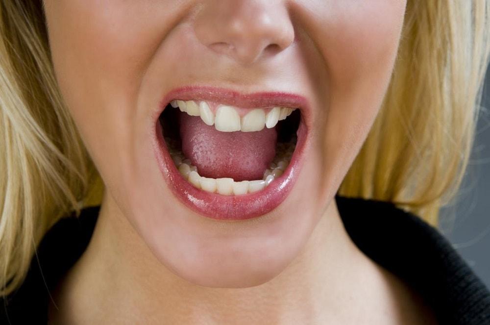 جوش های دهان