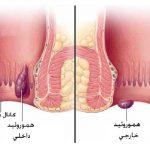 بیماری بواسیر