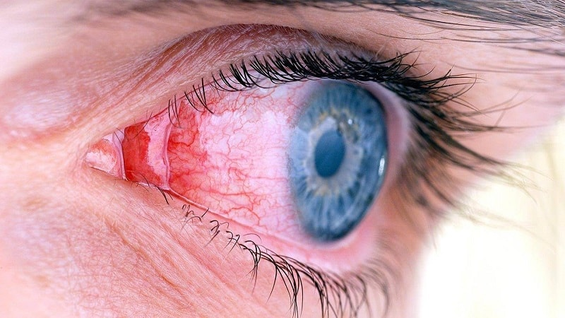 تاثیر ژل رویال بر بهبودی آسیب چشمی ناشی از دیابت