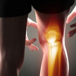درمان درد مفاصل با سرکه سیب
