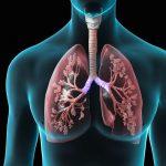 بیماری فیبروز ریه