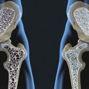درمان پوکی استخوان با سرکه سیب
