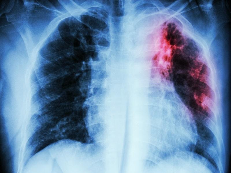 نمایش X-Rey التهاب کیسه های هوایی در اثر آلرژی خارجی کیسه های هوایی
