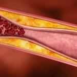 درمان چربی خون بالا