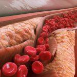 کاهش کلسترول خون با ژل رویال