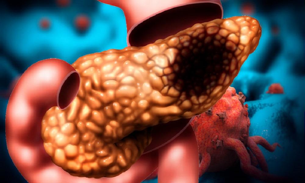 سرطان پانکراس
