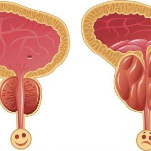 درمان کوچکی پروستات با سرکه سیب