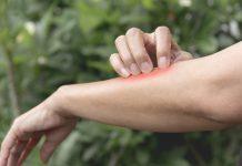 درمان سم گیاهان