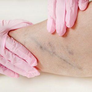 درمان واریس با ژل رویال
