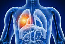 آلرژی خارجی کیسه های هوایی