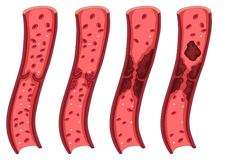 انسداد رگ ها یکی از عوامل فشار خون ریوی