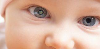 درمان بیماری چشم با بره موم