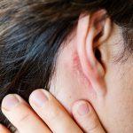 درمان عفونت قارچی با بره موم