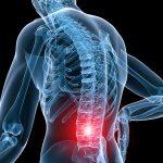 درمان کمر درد با بره موم