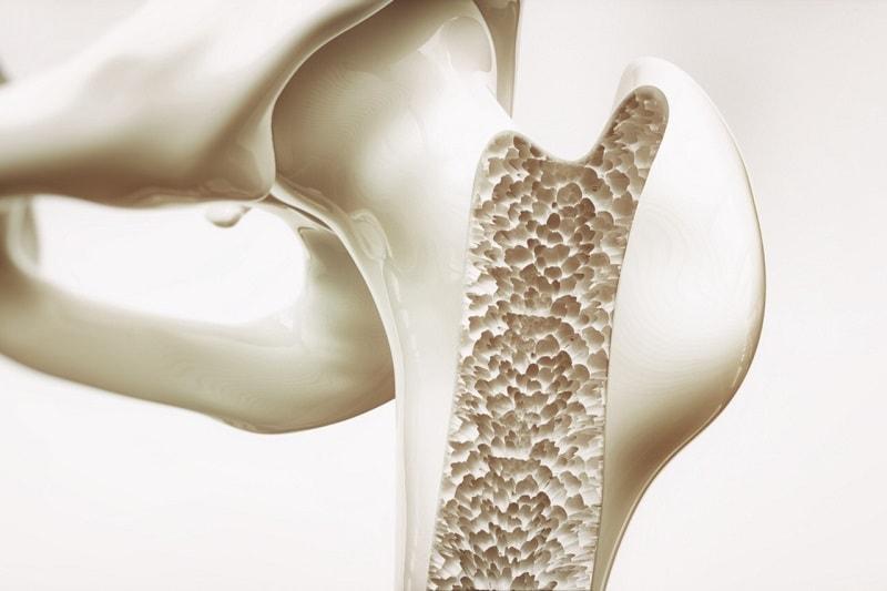 استخوان سازی با بره موم
