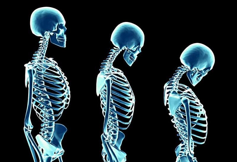 عوامل خطر پوکی استخوان