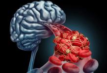 اختلال در خون رسانی به مغز