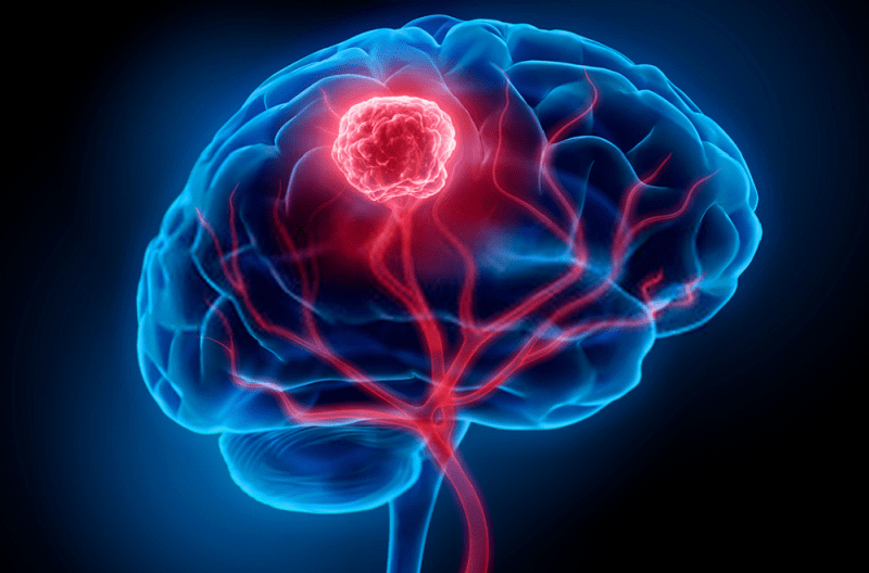 سردرد عصبی به علت وجود تومور