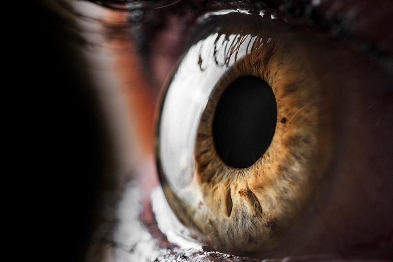 بر آمدگی غیرطبیعی چشم از حدقه