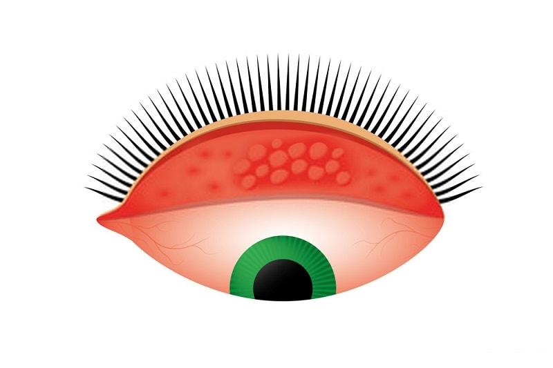 نشانه های بیماری تراخم چشم