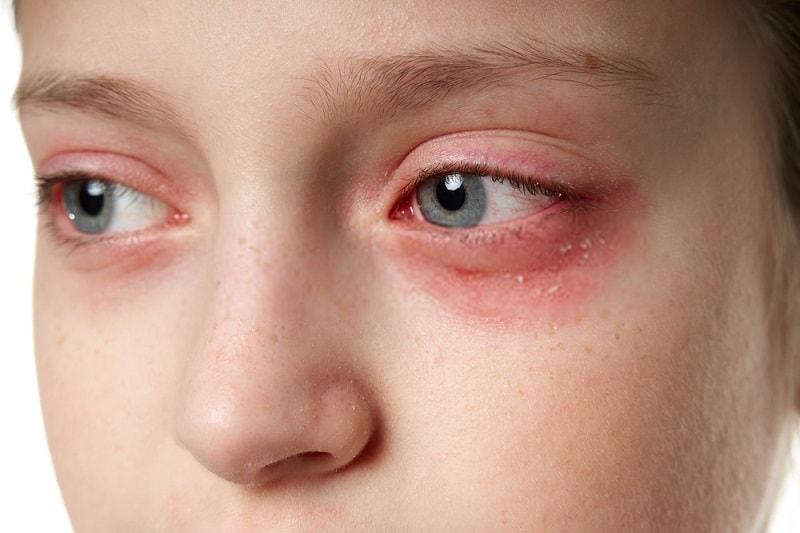 بیماری ها چشم-التهاب يووه
