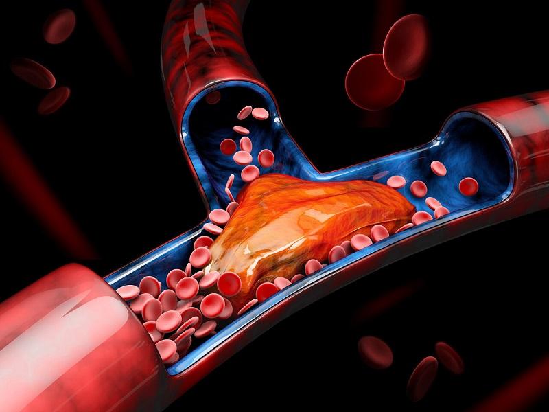 درمان بیماری آرتریوسکلروز با خام گیاه خواری