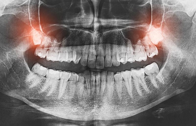 درمان بیماری استخوان و دندان با خام گیاه خواری