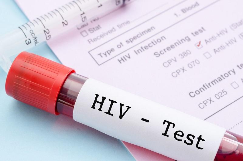 طب سنتی و ایدز